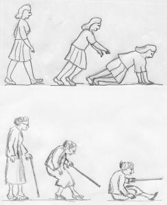 Hip fracture illustration