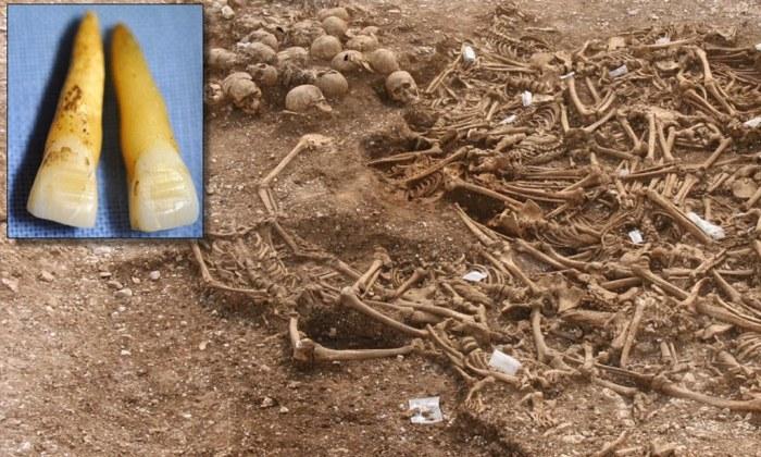 Viking Filed Teeth Grave 1