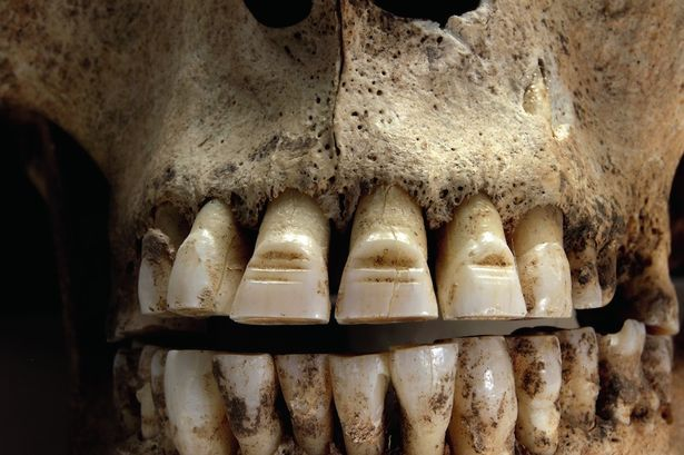 Viking Filed Teeth Grave